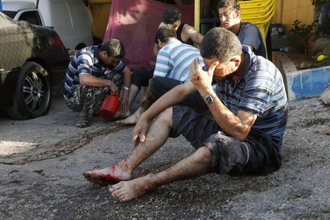 Some of the wounded in Beirut today.