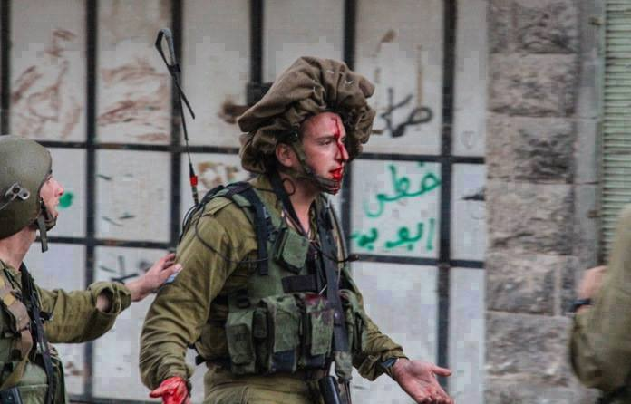 "Not to worry. This soldier was only hit by a ""rock"". Wounds like this have become the daily norm in Jerusalem, Judea, and Samaria."