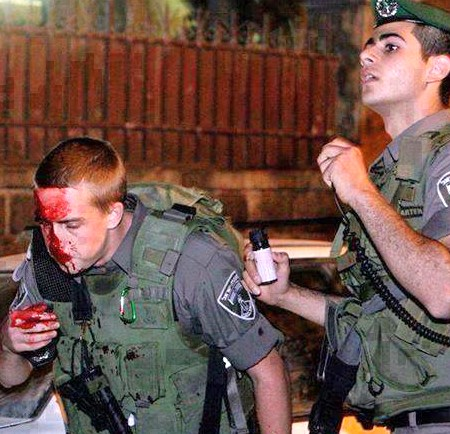 An Israeli Border Guard who was wounded last night (picture: ynet news).
