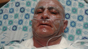 Sgt. Moshe Chen--who stopped the terrorist in the hospital with burns to his face and body..